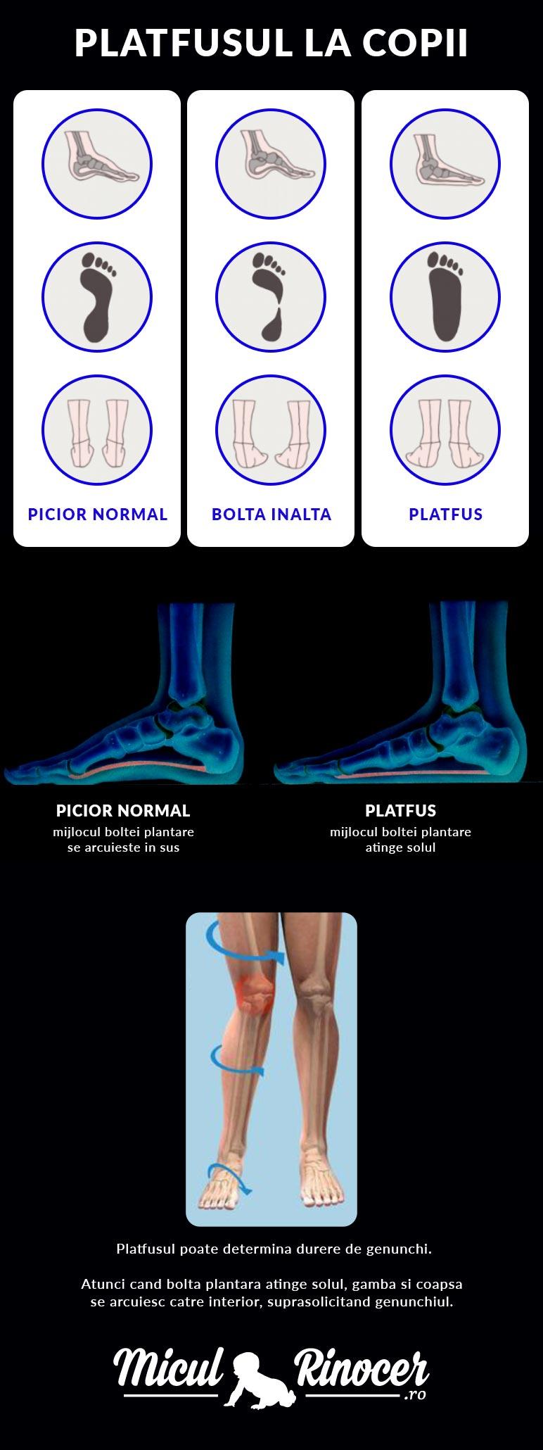 Durerile de picioare la copii. Cauze, simptome și tratament