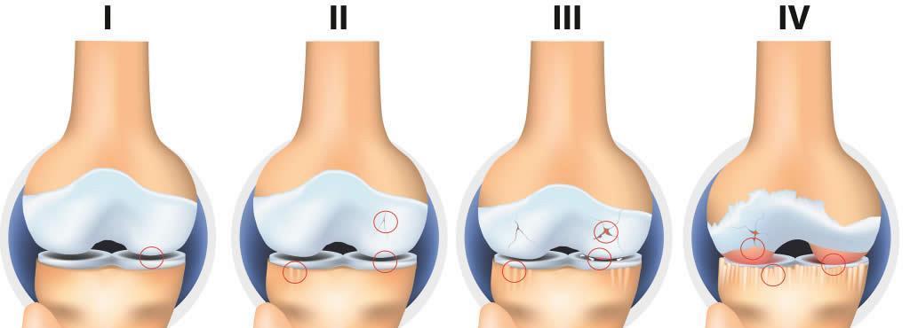 gonartroza simptomelor și tratamentului articulației genunchiului)