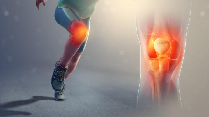 durere de artrită și inflamație articulară
