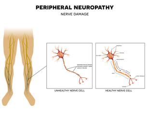 afectarea nervilor la genunchi