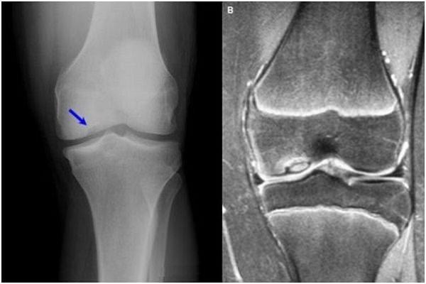 revărsare în articulația genunchiului din artroză