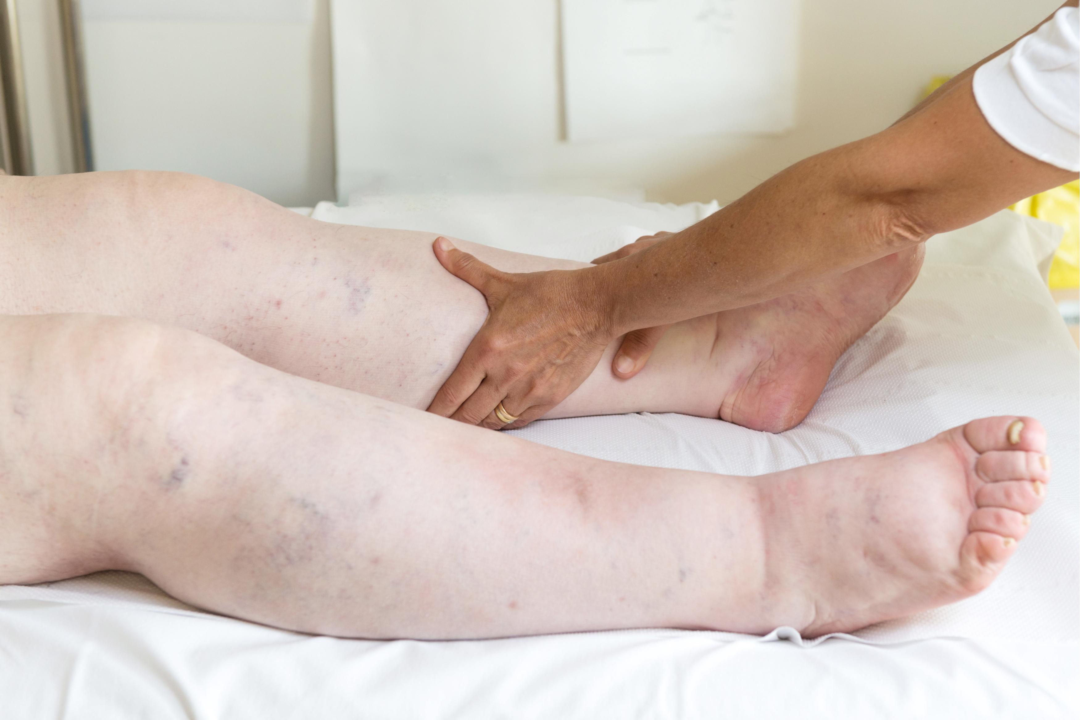 Inflamarea articulației picioarelor, diagnosticarea