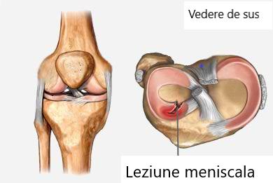 menisc al tratamentului conservator al genunchiului