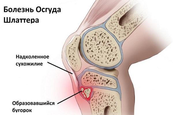 artroza tratamentului articulației genunchiului cu brusture)