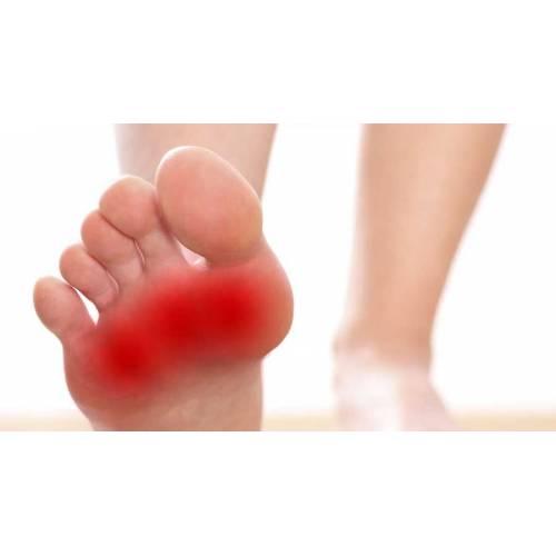 dureri severe la nivelul piciorului în zona articulațiilor