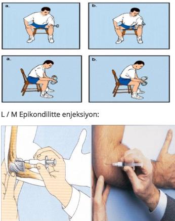 luxația luxată și inflamația articulației șoldului)