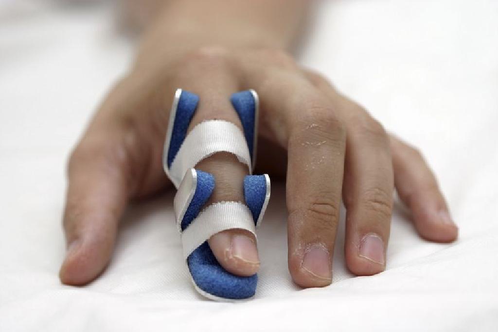 Cum recunosti o fractura | blumenonline.ro