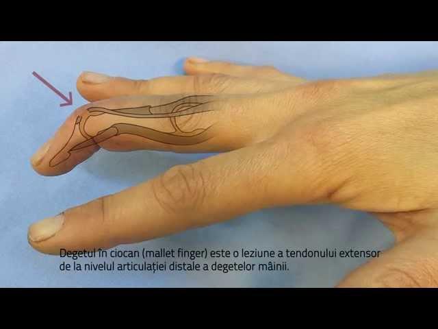 tratamentul fracturii articulației degetelor)