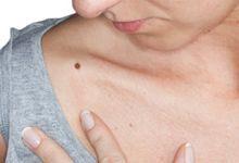 Lupusul: care sunt simptomele si cum pot fi ameliorate