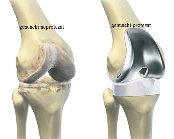 articulație din genunchi de titan Preț)