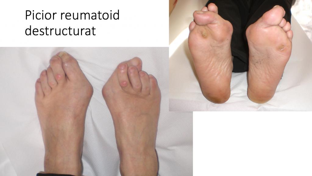 artrita reumatoidă a articulațiilor piciorului