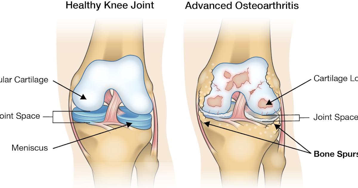 capsule pentru artroza genunchiului