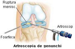 ruperea meniscului articulației genunchiului unde se va trata de la dureri articulare în plicha