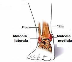 probleme cu fractura de glezna sinuzita tratamentului articulației genunchiului
