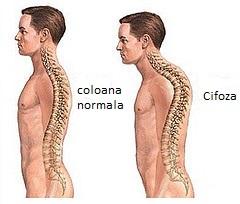 Tratament artroza cifoza. Navigare principală