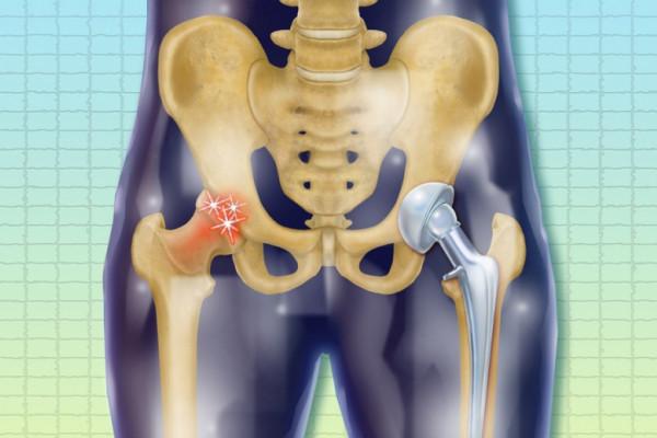 dureri de genunchi după înlocuirea șoldului