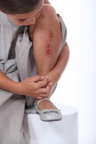 rană la genunchi)
