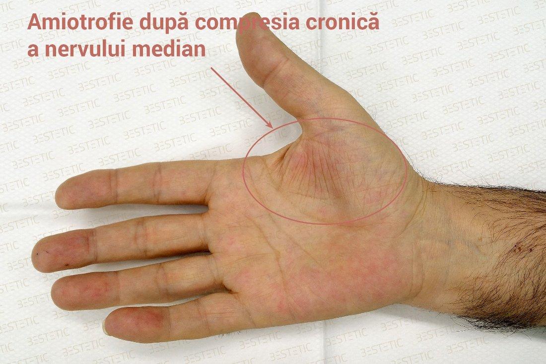 durere la mâini și amorțeală)