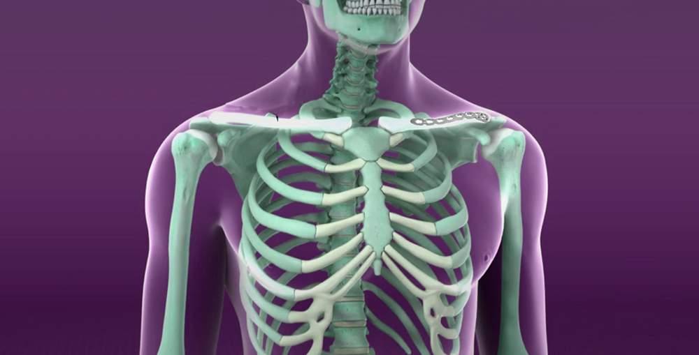 oasele articulațiilor musculare doare