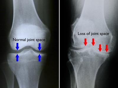 Artroza genunchiului în stadiul inițial al tratamentului, Artroza genunchiului