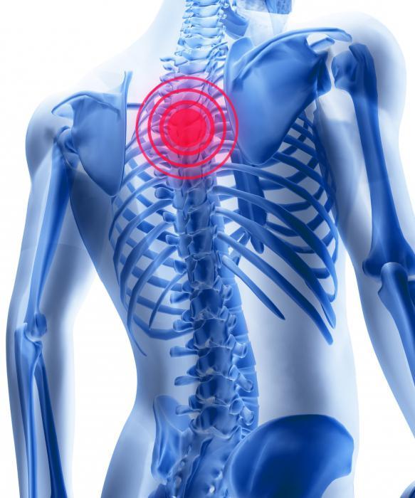 antiinflamatoare pentru osteochondroza toracică)