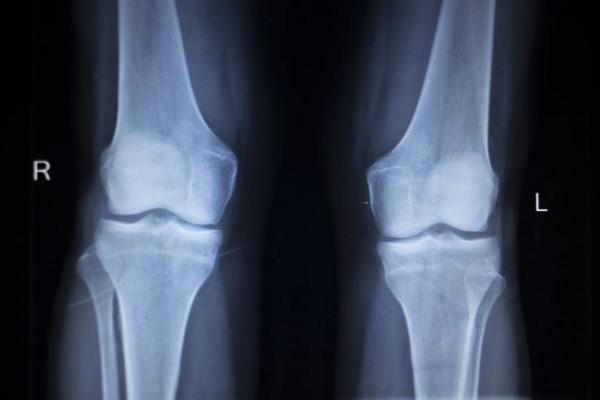 cum se tratează artroza și osteoporoza