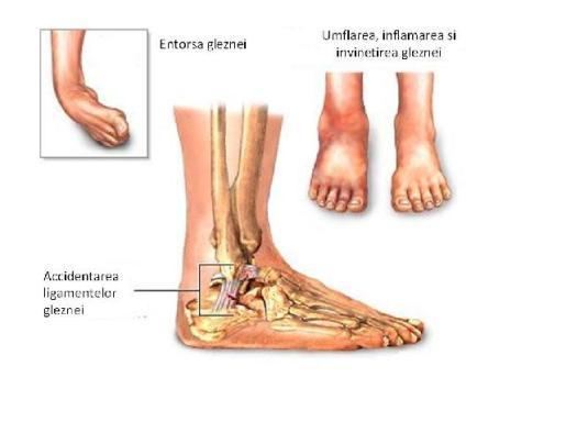 Inflamația articulației calcaneale. Clasificarea bursitei