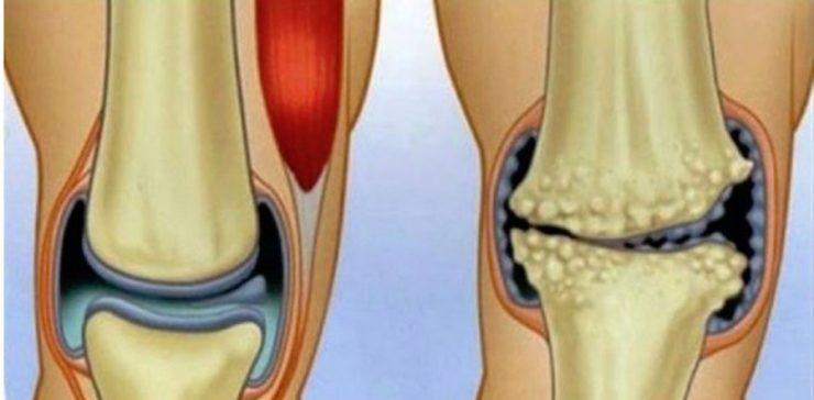 tratamentul artritei articulațiilor degetului mare