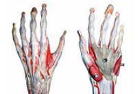 Dureri articulare ale falangelor degetelor, Artroza mainilor: de ce apare si cum se trateaza