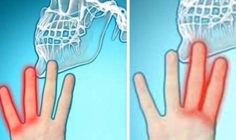 mâinile tale sunt amorțite de artrită)