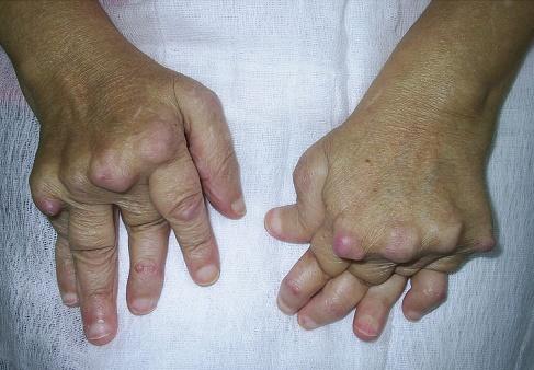 Poliartrita Reumatoida: Simptome • Poze • Analize • Tratament - blumenonline.ro