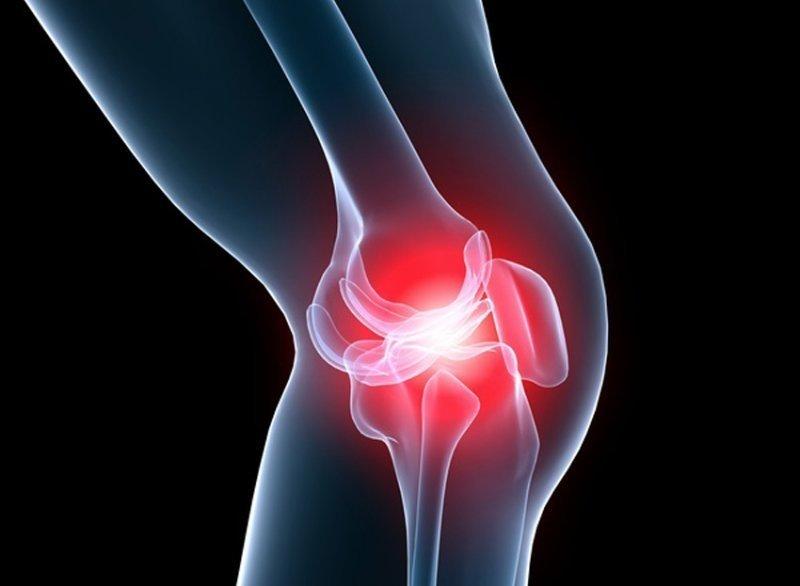 artroza articulațiilor mâinii și piciorului.