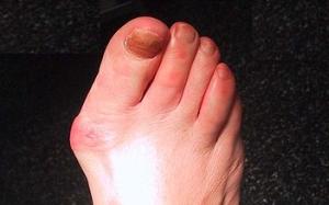 inflamația articulației degetului mare ce trebuie făcut)