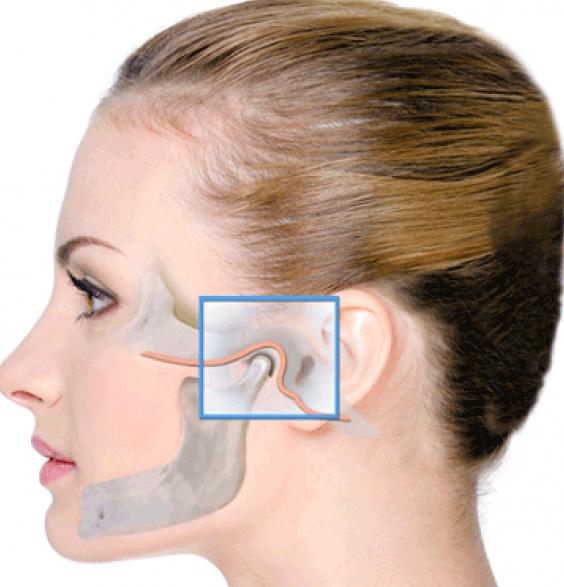 tratamentul articulațiilor maxilarului)