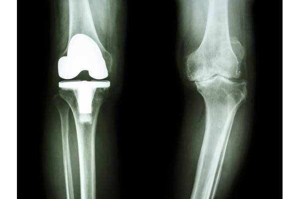 operație de tratament cu artroză