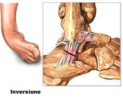 tratamentul artrozei ivanov antiinflamatoare nesteroidiene pentru unguente de osteochondroză