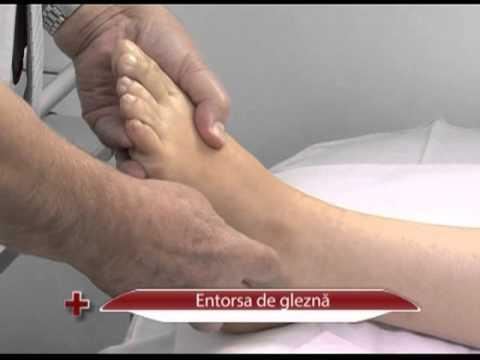 dureri de gleznă cu picioarele plate)