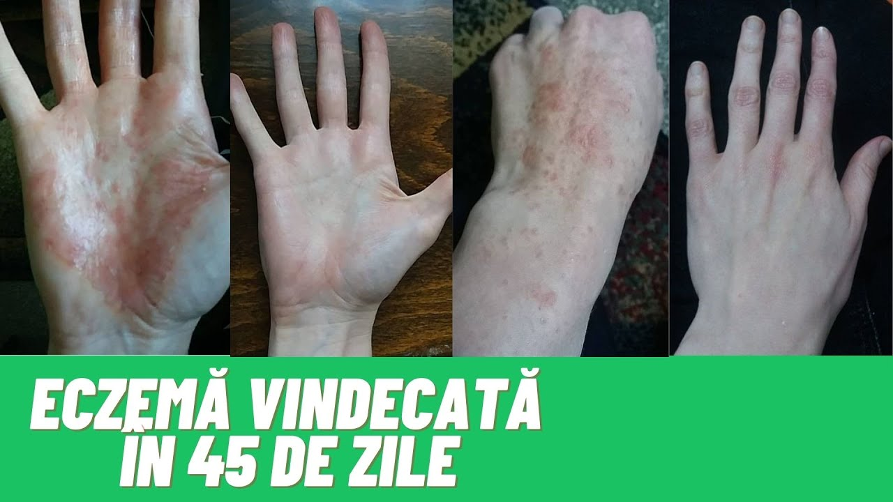 Crema pentru artrita la maini