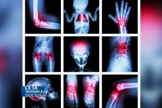 Metoda lui gerasimov în tratamentul coloanei vertebrale