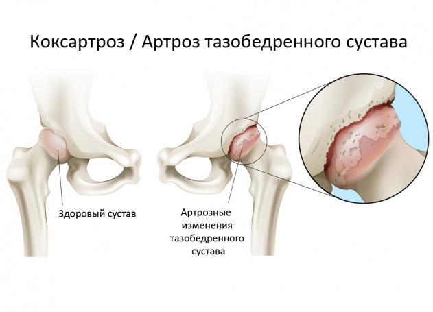 Болезни и болевые синдромы суставов!