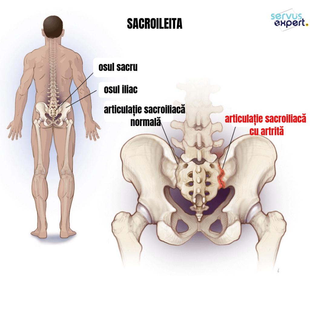 durere în articulațiile sacrului)
