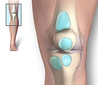 Umflarea peste genunchi. Poate răni articulațiile contraceptive