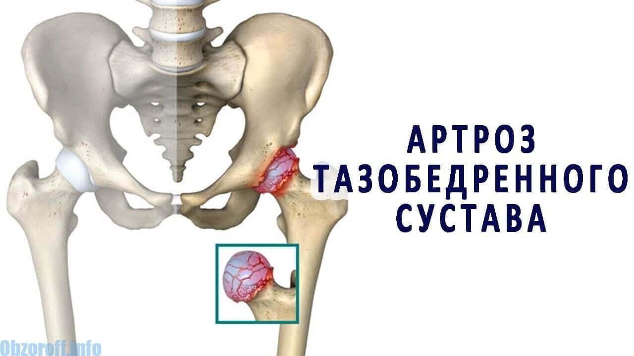 tei de la dureri articulare tratarea artrozei metode moderne