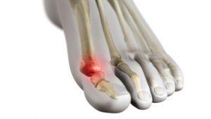 artrita guta a încheieturii
