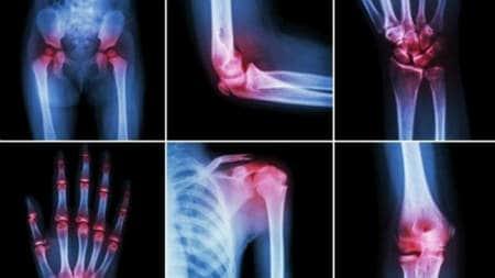 artrita și artroza diferitelor articulații)