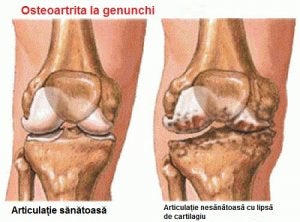 artrita incipienta a genunchiului