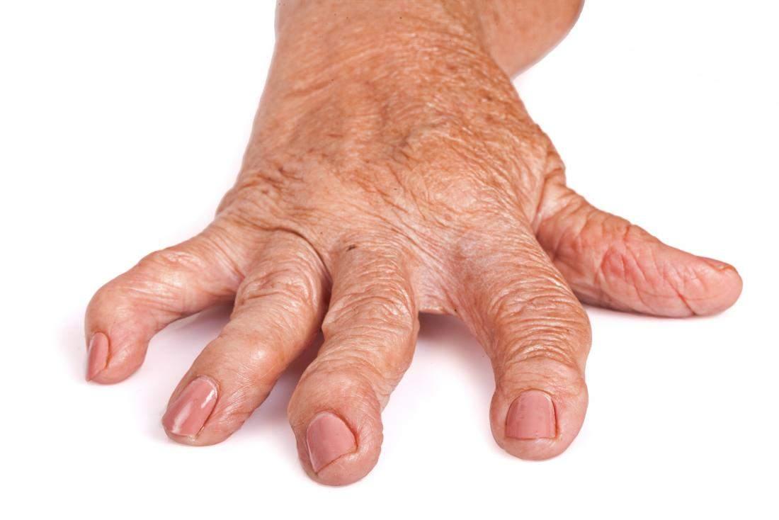 artrita reumatoidă a degetelor cauzează primele simptome)