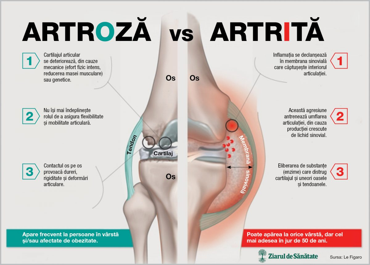 artrita sau artroza mâinilor
