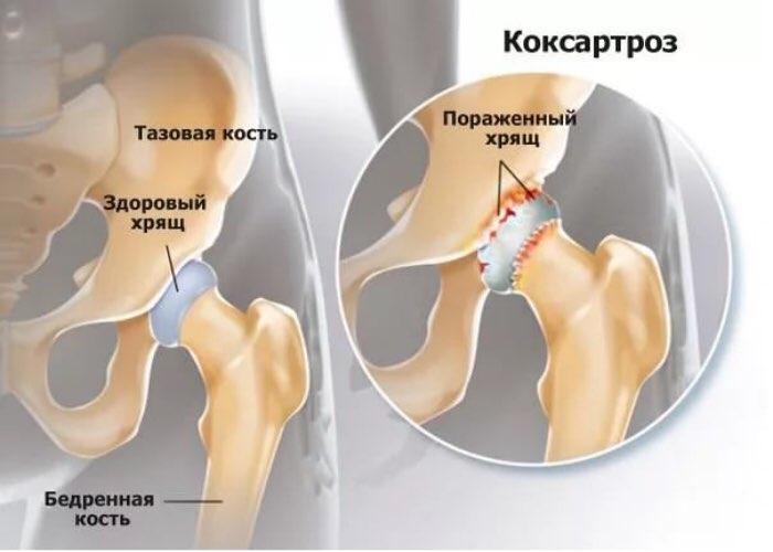 mâinile umflate dureri de articulații pretul tratamentului cu artroza laser
