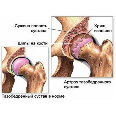 ce injecții pentru durere în articulația umărului bolile artritei și modul de tratare